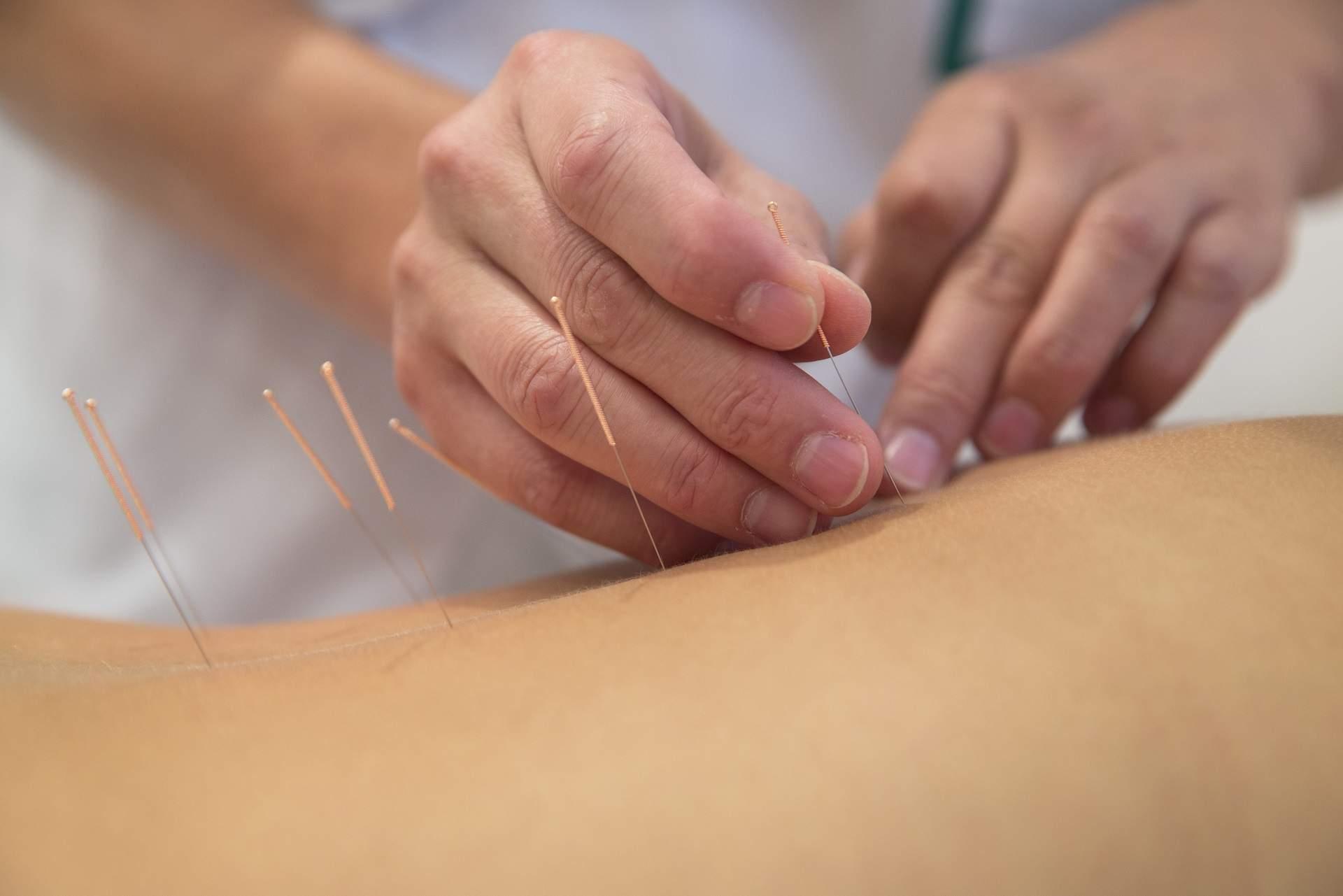 Acupuncture Blog