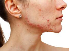 Acupuncture and Chinese herbs for Acne and Skin Disorders