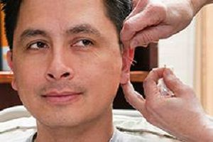 Acupuncture for Tinnitus