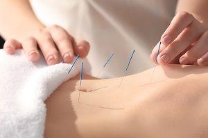 Acupuncture Treatment subiaco